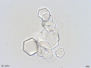 Cysteine Crystals
