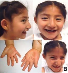 What Is Angelman Syndrome