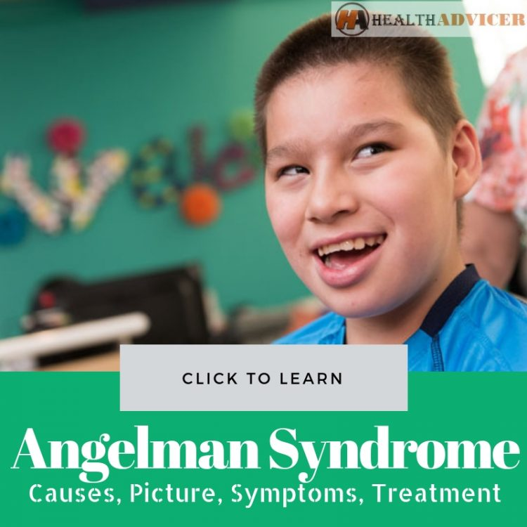 Angelman Syndrome Causes picture treatment