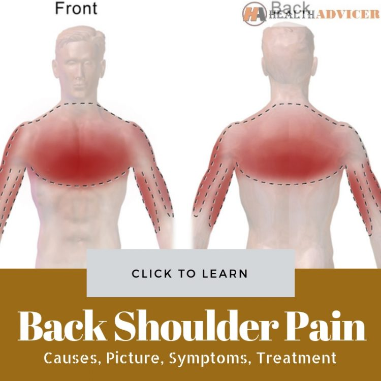 Back Shoulder Pain Causes Treatment