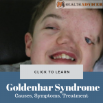 Goldenhar Syndrome