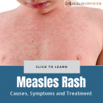 Measles Rash Causes Treatment