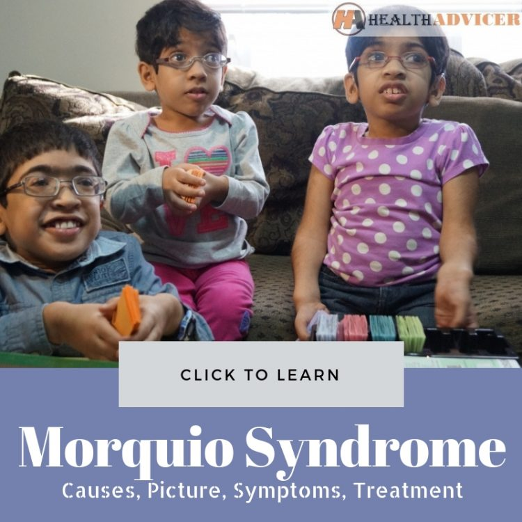 Morquio Syndrome Picture
