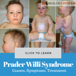 Prader Willi Syndrome Picture