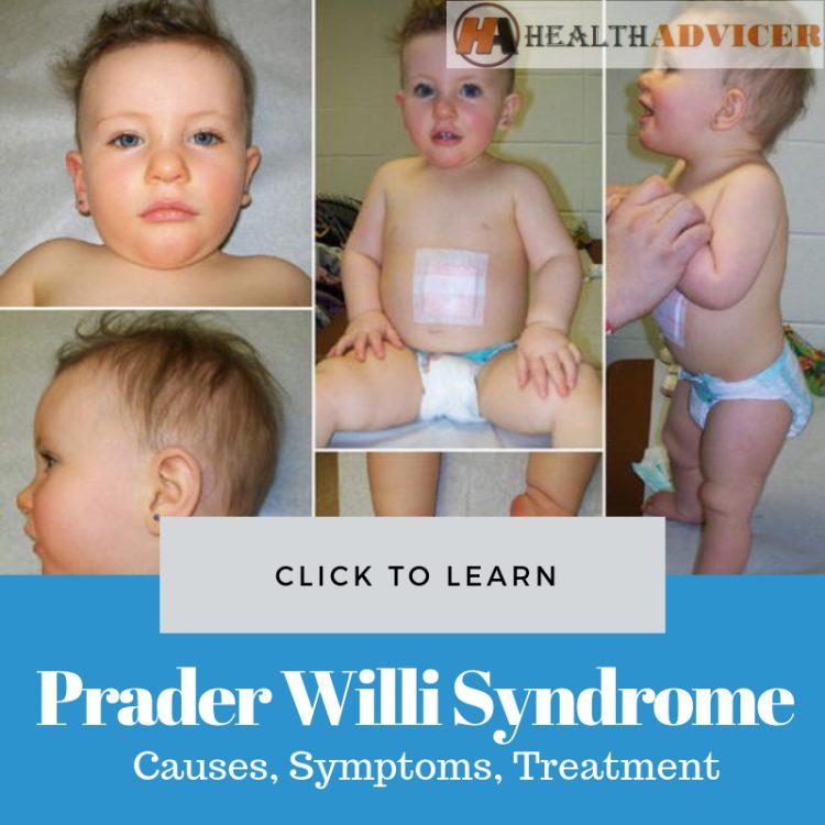 Prader Willi Syndrome Picture