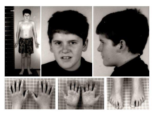 Prader Willi Syndrome