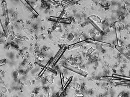 Struvite Crystals (Magnesium Ammonium Phosphate)
