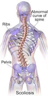 Spinal Cord Problems