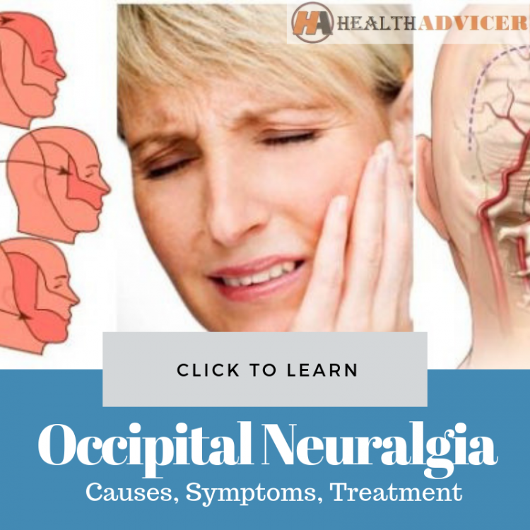Occipital Neuralgia Causes Treatment