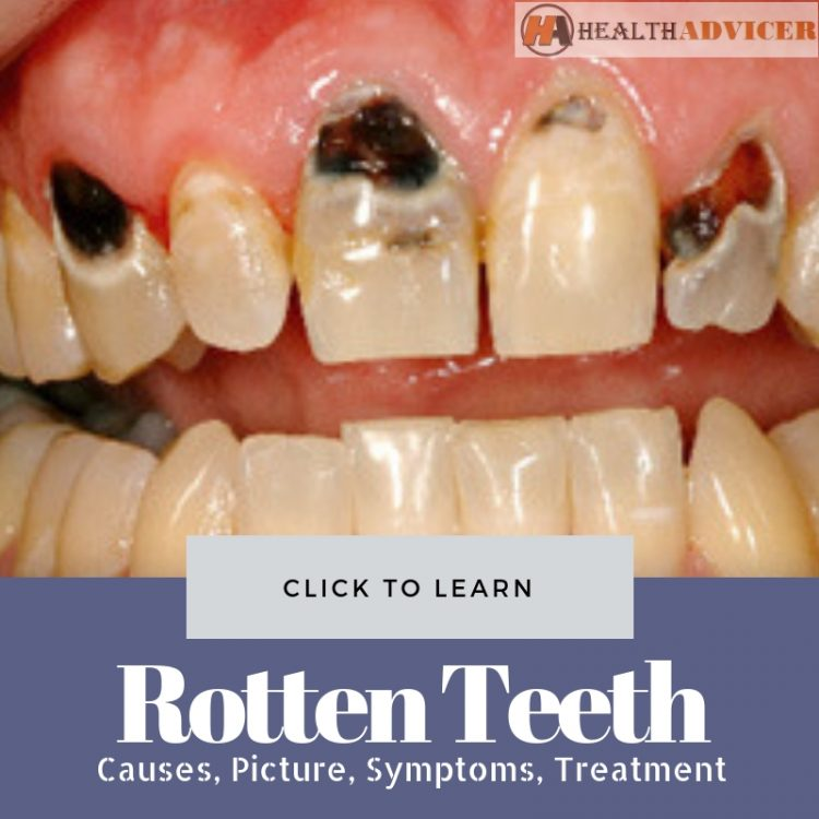 Rotten Teeth Picture