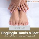 Tingling in Hands and Feet