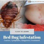 Bed Bug Infestation Picture