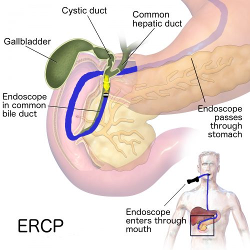 Remove Bile Duct Obstructions