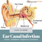 Ear Canal Infection Picture
