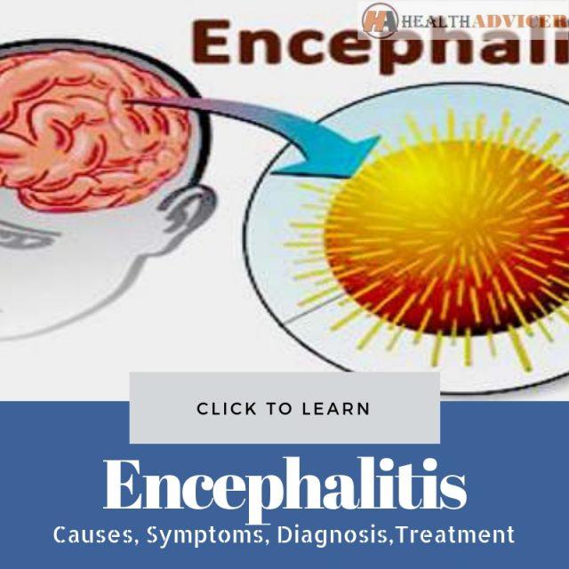 Encephalitis Picture