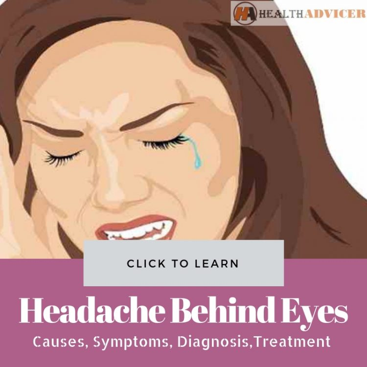 Headache Behind Eyes Picture