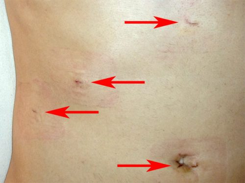 cholecystectomy scars