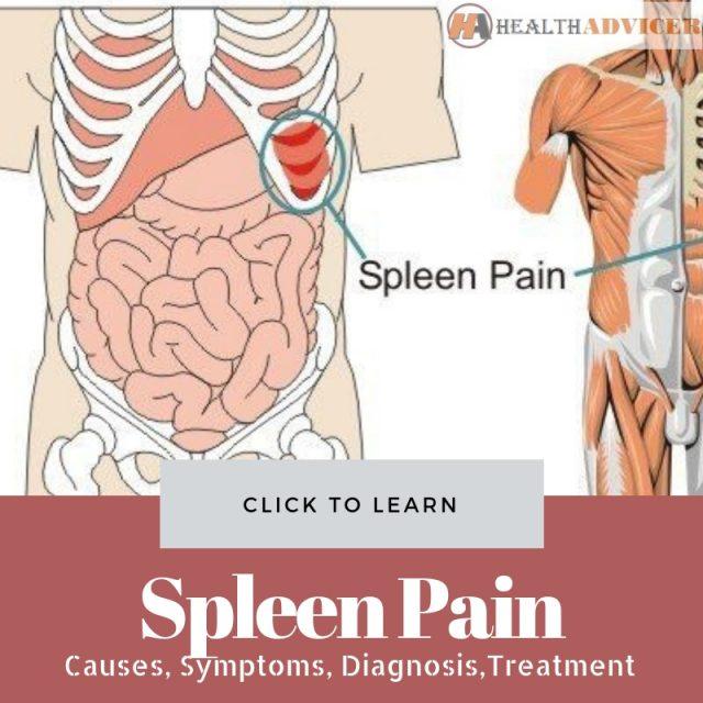 Spleen Pain Picture