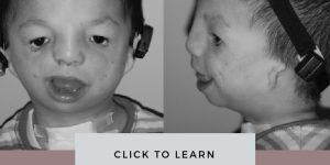 Treacher Collins Syndrome Picture