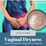 Vaginal Dryness Picture