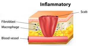 Second Phase Of Wound Healing Stages: Inflammatory Phase