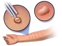 Skin Smear Test