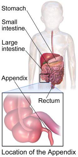 Appendicitis In Kids