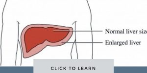 Enlarged Liver Picture