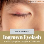 Ingrown Eyelash Picture