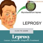 Leprosy Causes Treatment