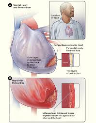Heart And Blood Vessel Problems