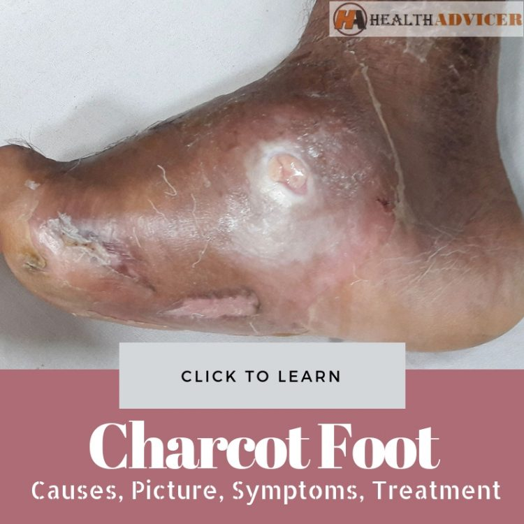 Charcot Foot Picture