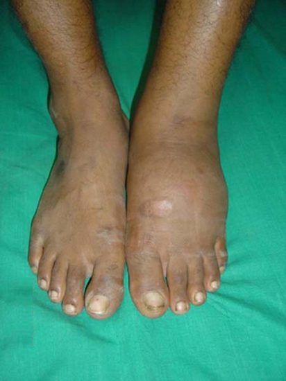 What Is Charcot Foot
