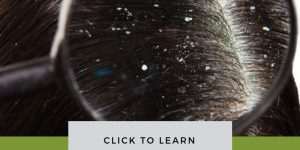 Dandruff Pictures Causes treatment