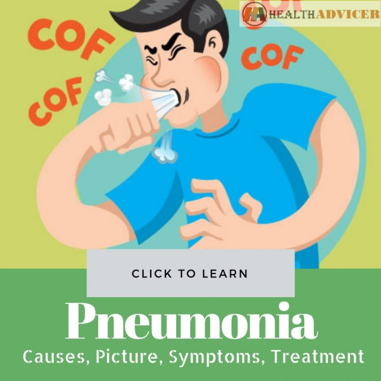 Pneumonia Causes picture treatment