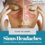 Sinus Headaches Causes Treatment
