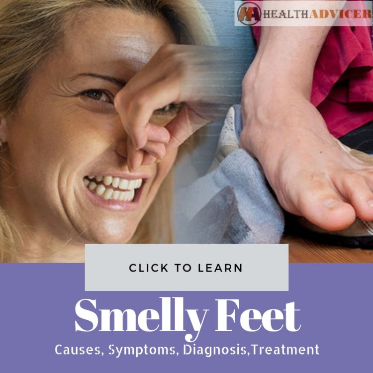 Smelly Feet Causes Treatment