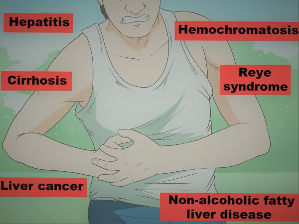 Causes Associated With Liver Pain