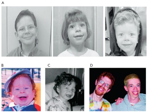 Williams syndrome