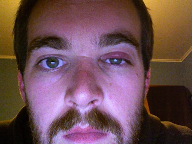 Symptoms Of Eyelid Swelling