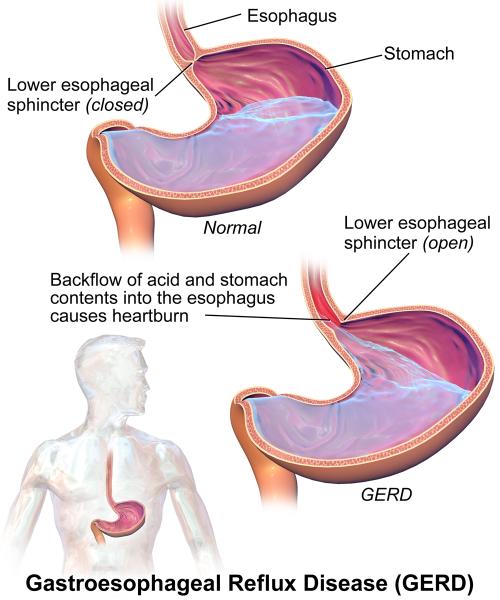 Diseases Causing Abdominal Pain