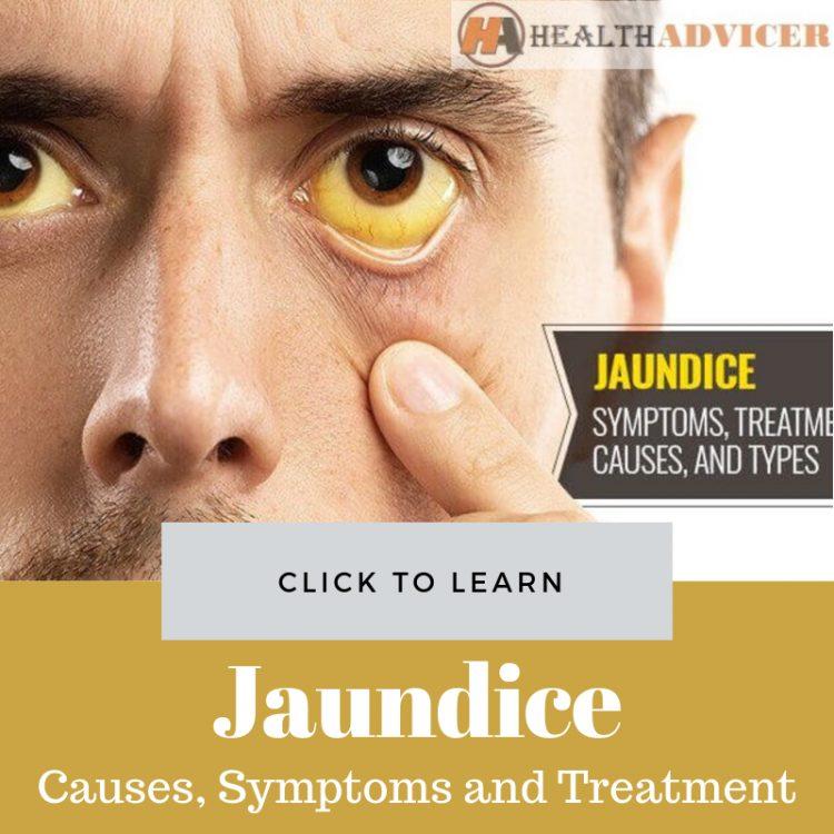 Jaundice Picture