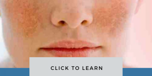 Melasma Causes Treatment