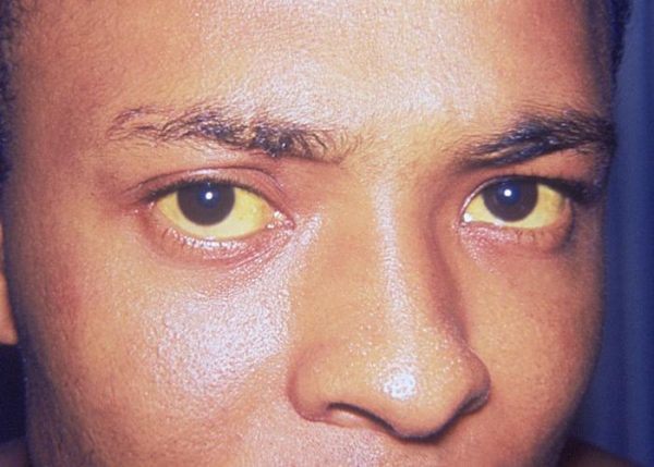 Jaundice In Adults