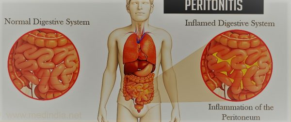 Complications Due To Peptic Ulcer