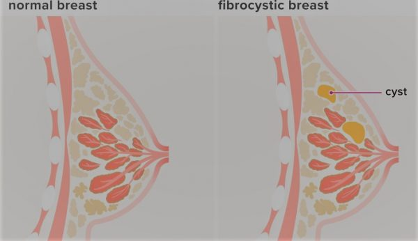 Fibrocystic Breasts