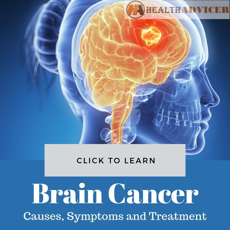 Brain Cancer Causes, Picture, Symptoms and Treatment