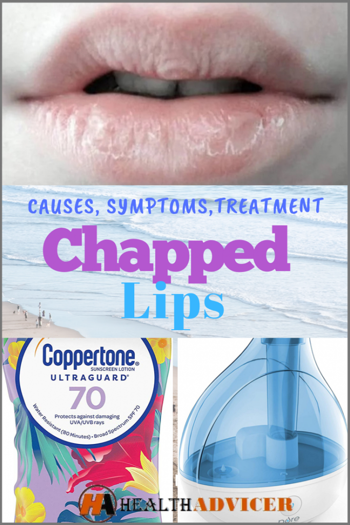 Chapped Lips Causes treatment