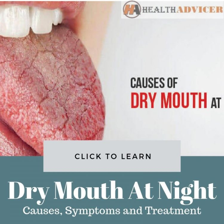 Dry Mouth At Night Causes Treatment
