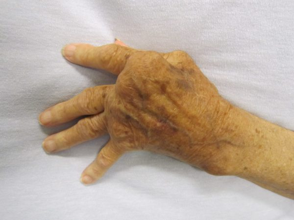 Know About Arthritis